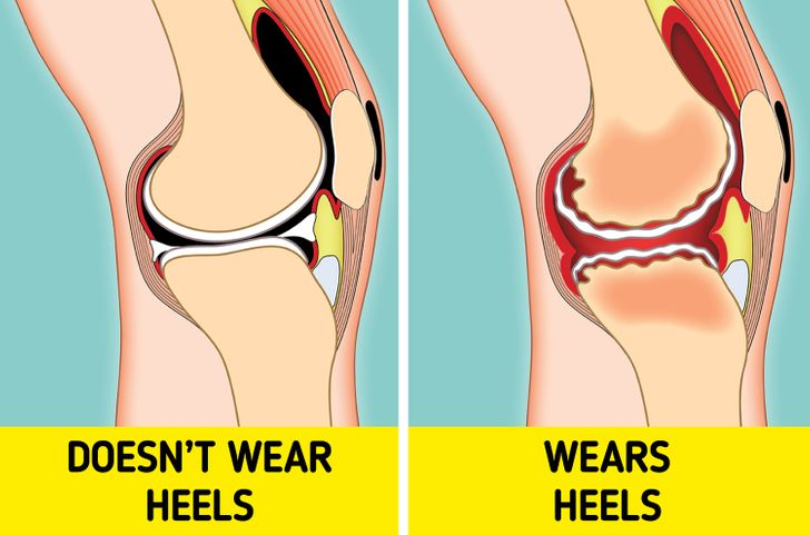 What Can Happen to Your Body If You Wear High Heels Every Day
